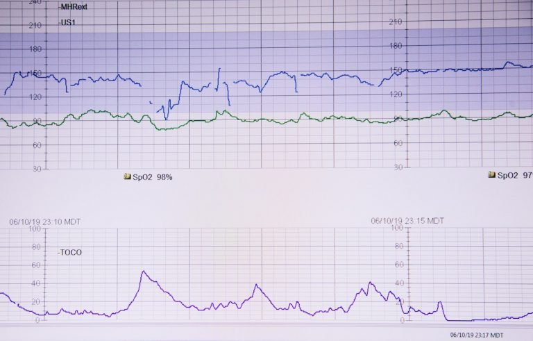 Heart rate chart showcase science behind healthy breathing