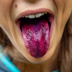 Tongue is important for healthy breathing